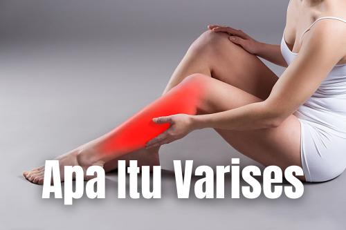 """Apa Itu Varises : Pengertian, Tanda dan Gejala, Penyebab, Faktor Risiko Pengertian Varises Varises adalah pembuluh darah vena yang membengkak dan tampak dekat dari permukaan kulit. Pembuluh vena membawa darah dari sel dan jaringan kembali ke jantung, di mana darah bisa mendapatkan oksigen.  Tanda dan Gejala Varises Gejala-gejala dari varises dapat berupa sebagai berikut : Nyeri kaki atau kaki terasa berat, khususnya setelah berdiri atau duduk dalam waktu yang lama Vena terlihat menonjol menyebabkan bengkak sepanjang paha, mata kaki, atau lutut Kulit kering dan gatal. Perubahan warna, kulit yang lebih tipis, ulkus dan infeksi jaringan lunak (selulitis) dapat terjadi di dekat mata kaki  Penyebab Varises Varises disebabkan karena katup vena melemah dan tidak mampu menahan akumulasi darah. Penyakit ini tidak menular ataupun diturunkan namun varises biasanya terjadi dalam satu keluarga.  Faktor Risiko Varises Ada banyak faktor risiko untuk varises, yaitu: Usia: Risiko varises meningkat dengan bertambahnya usia karena pembuluh darah dan katup pembuluh darah memburuk secara bertahap Jenis kelamin: wanita yang mengalami perubahan hormonal akibat hamil, wanita dalam terapi hormon dan pil pengontrol kehamilan, wanita yang sedang menstruasi atau menopause Riwayat keluarga: Anda memiliki keluarga yang menderita varises Obesitas: tekanan darah tinggi dan aterosklerosis yang disebabkan berat badan berlebih tidak hanya menyebabkan varises tetapi juga meningkatkan risiko penyakit jantung Duduk atau berdiri dalam waktu yang lama.  Nah itu dia bahasan dari apa itu penyakit Varises pada tubuh manusia. Melalui bahasan di atas bisa diketahui mengenai pengertian, tanda dan gejala, penyebab, dan faktor risiko dari penyakit Varises. Mungkin hanya itu yang bisa disampaikan di dalam artikel ini, mohon maaf bila terjadi kesalahan di dalam penulisan, dan terimakasih telah membaca artikel ini.""""Gob Bless and Protect Us"""""""