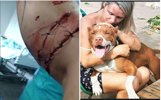 Mulher tenta defender o filho e é atacada violentamente por um pitbull em Chapadinha-MA