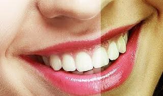 दांतों से पीलापन तुरन्त गायब करे ये तरीके Top 7 Homemade Tips for White Teethin Hindi
