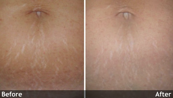 Laser Treatment for Stretch Marks BEFORE and AFTER Pictures 001