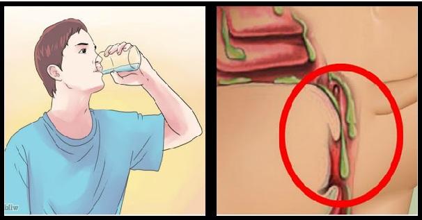 Obat Menghilangkan Lendir di Tenggorokan