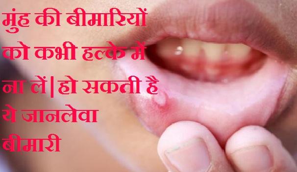 मुंह की बीमारियों को लें गंभीरता से, हो सकता हैं गंभीर बीमारी