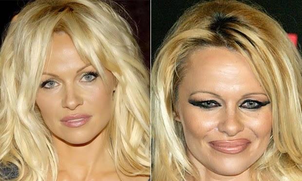 antes e depois do Botox