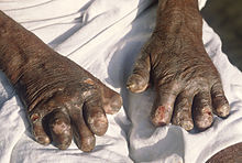 leprosy in nigeria