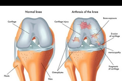 Knее Arthrоѕіѕ and Treatment