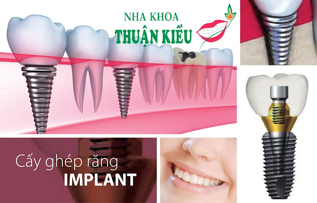 cay-ghep-rang-implant-nha-khoa-uy-tin-thuan-kieu-2016