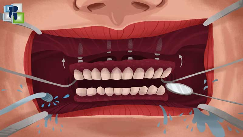 اختلاطات قلع الأسنان وتدبيرها: أذيات النسج الرخوة