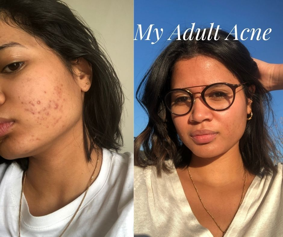How to treat Adult Acne   Hanitra