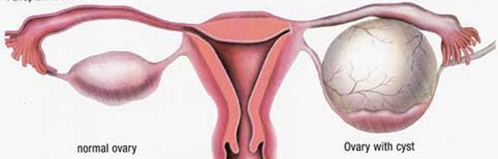 Mengatasi Kista Ovarium Dengan Ramuan Tumbuhan Obat