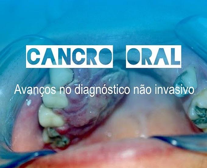 Avanços no diagnóstico não invasivo de Cancro Oral