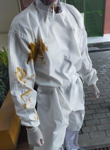 """Surabaya-Polrestabes Surabaya telah memeriksa N, istri dan anak pasienpositif covid-19yang melumuri kotoran tiga petugas satgas covid-19. N dilaporkan salah seorangsatgas COVID-19yang menjadi korban perlakuan tidak menyenangkan itu, Cholik Anwar.  Kasatreskrim Polrestabes Surabaya, AKBP Sudamiran mengatakan petugas bernama Anwar telah melaporkan perbuatan tidak menyenakan tersebut ke SPKT Polrestabes Surabaya.  """"Sudah kita periksa yang bersangkutan (istri pasien positif),"""" pungkas KasatreskrimPolrestabes Surabaya, AKBP Sudamiran, Minggu (4/10/2020).  Sudamiran menjelaskan proses pemeriksaan sudah dilakukan pihak Jatanras Satreskrim Polrestabes Surabaya sejak Sabtu (3/10/2020).  """"Sudah diperiksa yang bersangkutan pada Sabtu kemarin. Untuk data lengkapnya ke Jatanras Satreskrim,"""" tegas Sudamiran.   Kanit Jatanras SatreskrimPolrestabes Surabaya, Iptu Agung Kurnia Putra mengatakan ada dua orang yang diperiksa. Yakni istri pasien COVID-19 yang melempar kotoran serta anaknya.  """"Dua yang diperiksa. Istri pasien dan anaknya. Keduanya kooperatif. Mereka datang ke kantor dan saat diswab, karantina hingga keluar hasilnya negatif,"""" tegasnya seperti yang dilansir dari detik.com.  Sebelumnya, aksi tidak menyenangkan itu terjadi pada Selasa (29/9) sore di Rusun Bandarejo Lantai 2, Benowo, Surabaya. N melumurkan kotoran ke hazmat 3 dari 4 petugas yang tengah melakukan evakuasi terhadap suaminya.  Suami N yangpositif COVID-19dievakuasi ke RS Bhakti Dharma Husada (BDH) untuk menjalani perawatan yang lebih intensif. Sebab, pasien tersebut memiliki komorbid.  Apa yang dilakukan N dinilai tidak menyenangkan dan menghambat proses evakuasi pasien yang dilakukan petugas. Sehingga yang bersangkutan dilaporkan ke polisi. (Ricky/Tik)"""