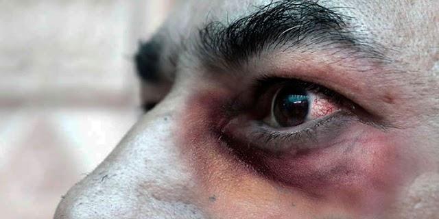 Hongo negro o mucormicosis, la rara infección que amenaza a pacientes del COVID-19 con la variante de la India