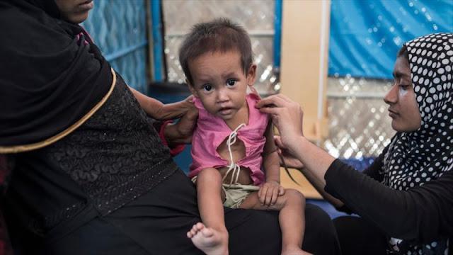 Unicef alerta: Aumenta nivel de malnutrición de niños rohingyas