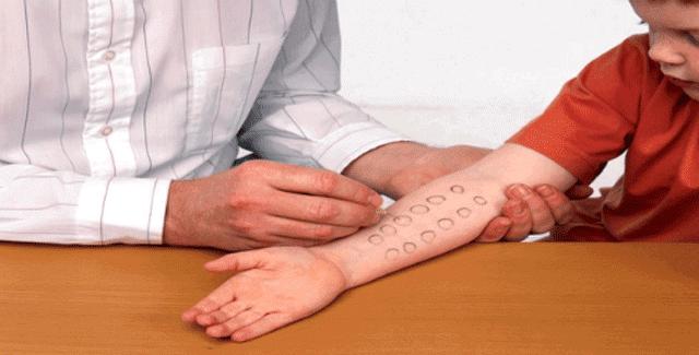كيف يتم عمل اختبار الحساسية بالتفصيل