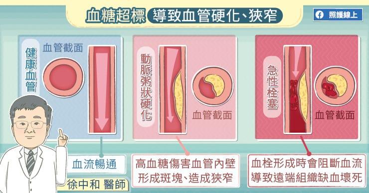 血糖超標導致血管硬化、狹窄