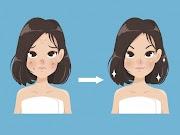Tips/Petua : Hilang Jerawat Dan Parut Dengan Mudah