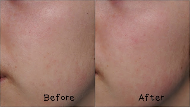 Skin before and after