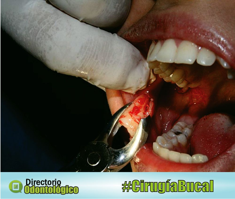 cirugía-bucal