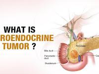 Neuroendocrine Cancer Stage 4