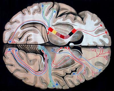 Ictus o accidente cerebrovascular