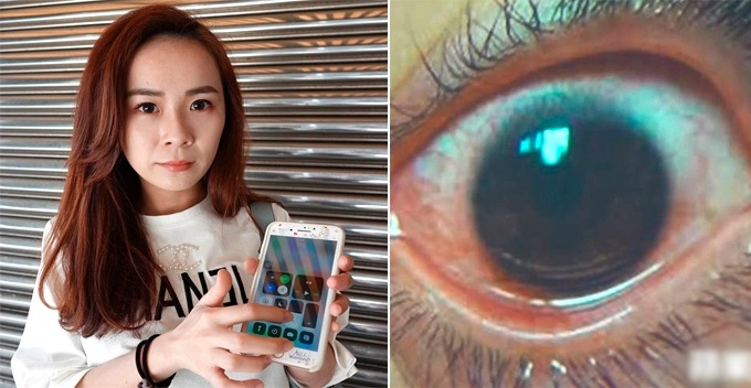 A Woman Always Uses Phone with Max Screen Brightness, Now Suffers 500 'Holes' on Cornea