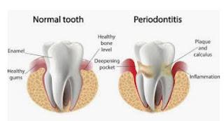 periodontal treatment Singapore