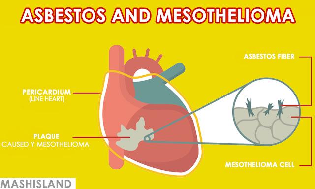 Asbestos and Mesothelioma