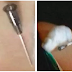 ABSURDO: Paciente fica com agulha 'esquecida' na nádega após injeção
