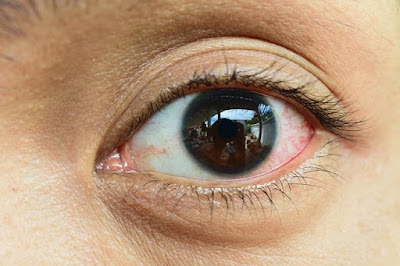 Contagious eye pain medication and its prevention
