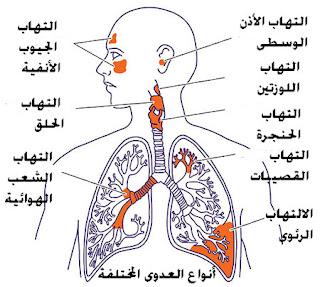Nama Penyakit Dalam Bahasa Arab dan Artinya
