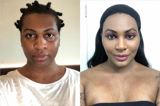 before after transgender facial feminization surgery in korea