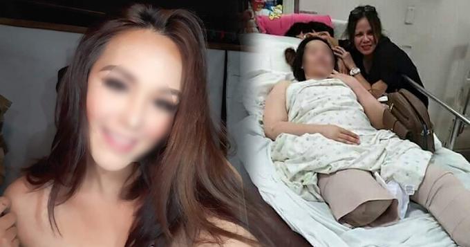 Sinong Beauty Queen Ang Naputulan ng Paa dahil sa Isang Aksidente