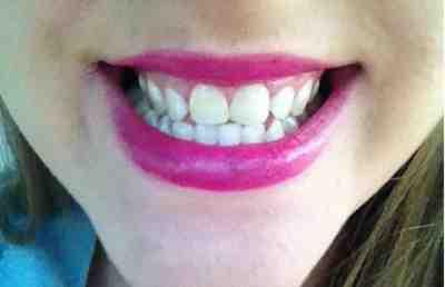 تبييض الاسنان في المنزل بطريقة طبيعية مجربة