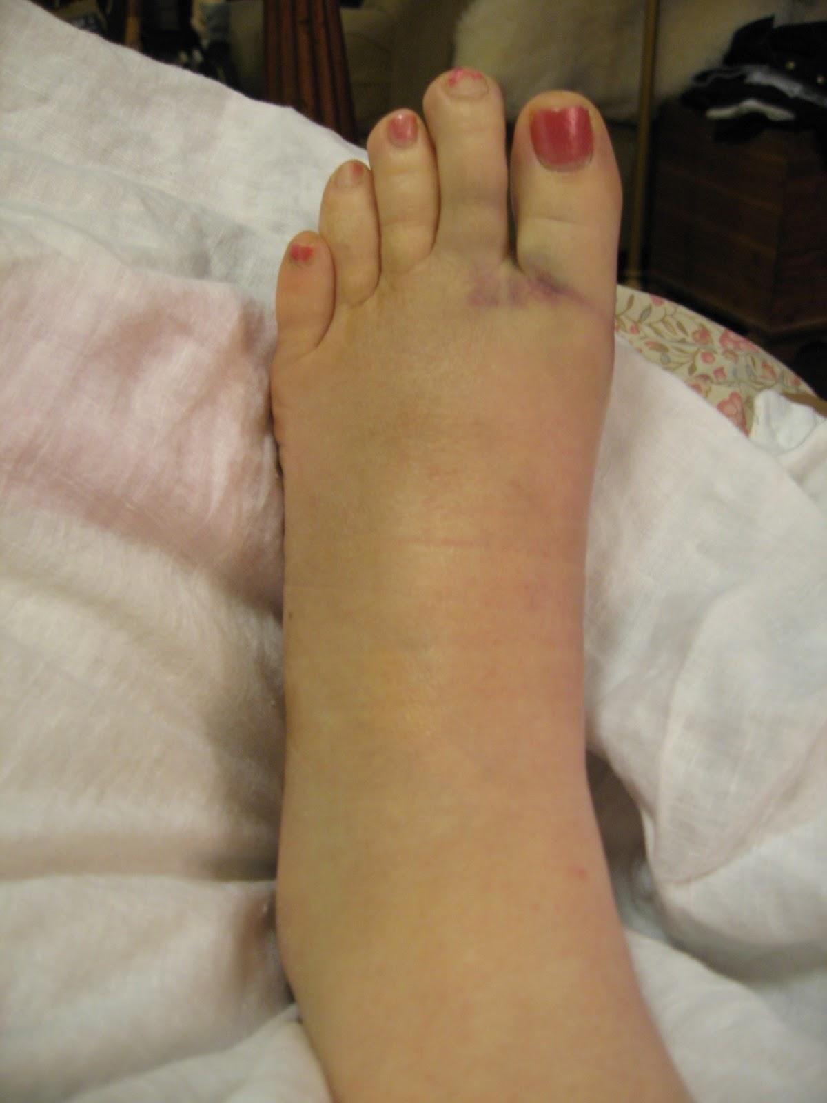 Candelyn's Plate: Top Ten Reasons NOT to Break Your Foot