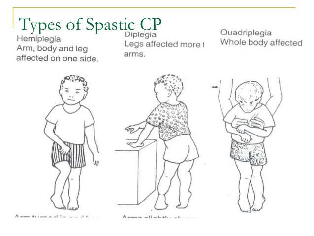 Dr Ajays Homeopathy : Homeopathy for Cerebral Palsy