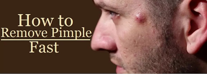 How to remove pimple permanently