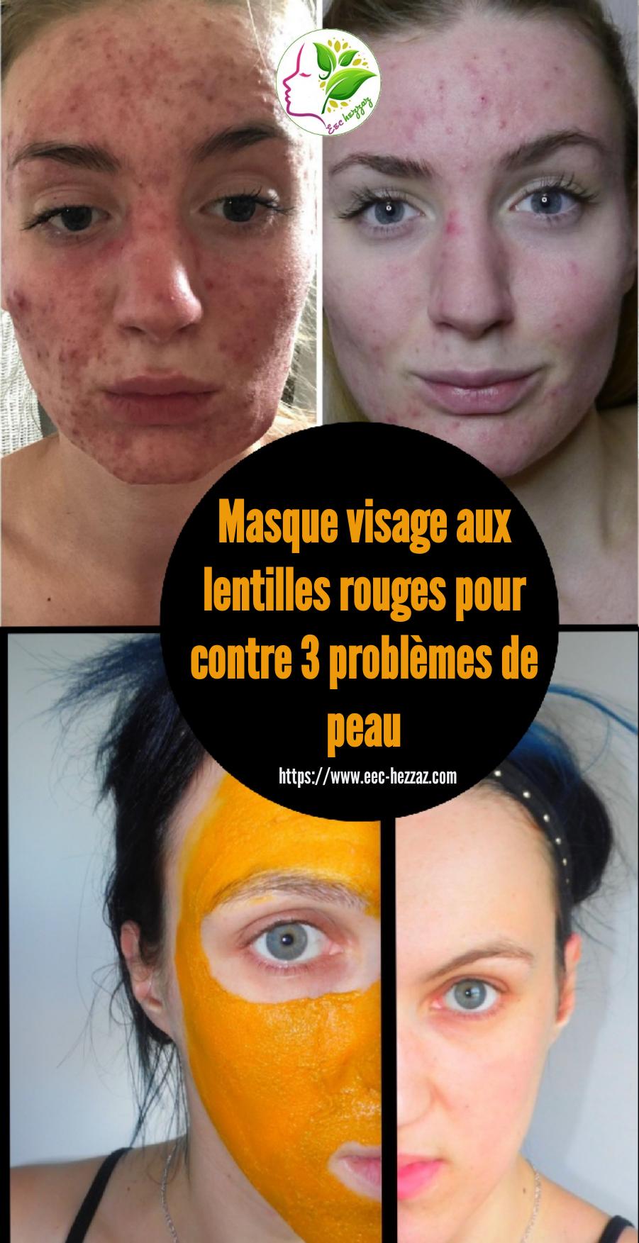 Masque visage aux lentilles rouges pour contre 3 problèmes de peau