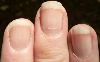 Lines On Nails Vitamin Deficiency