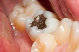 Les causes de la douleur dentaire