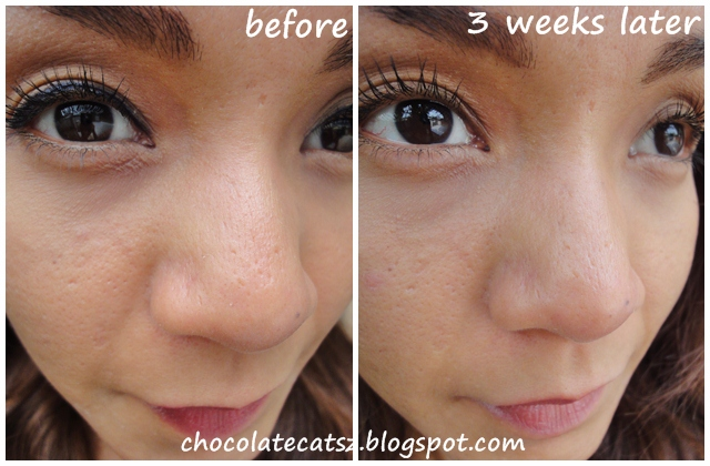 Chocolate Cats Review Clinique Pore Refining Solutions