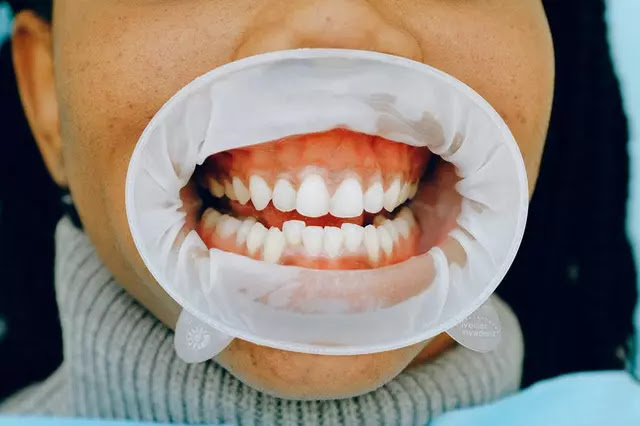 How to care for and clean your dental splint