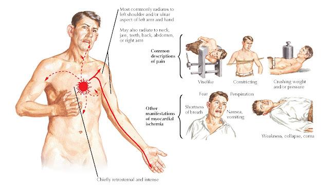 Pain of myocardial ischemia.