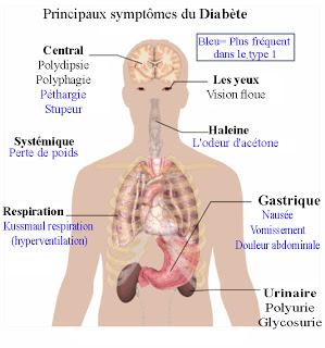 Les symptômes du diabète