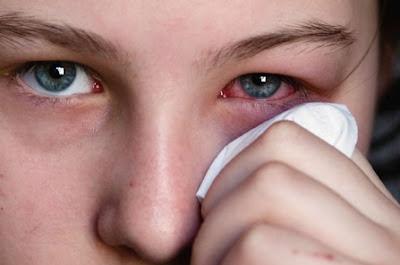Cara Mudah Mengobati Sakit Mata Merah