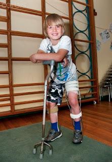Artrogriposis/ Fisioterapia en la etapa escolar y adolescencia