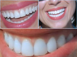 Comment blanchir les dents facilement avec ces remèdes naturels