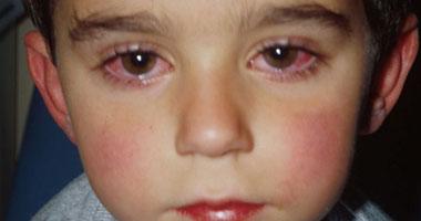 مرض الرمد :أنواعه و كيفية الوقاية منه