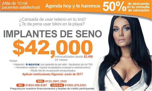 Aumento de senos con Implantes en Guadalajara. Costo y promociones
