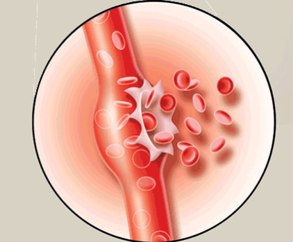 symptoms-of-brain-hemorrhage