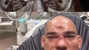 Mengerikan! Dihantam Lutut, Tengkorak Petarung MMA Evangelista Santos Retak Dan Alami Cedera Serius